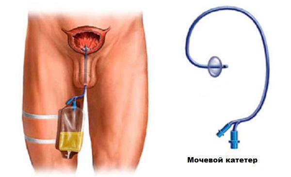 Цистит: признаки и схема лечения