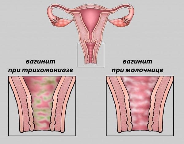 Как лечить вагинит у женщин