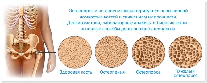 Остеопороз и системная красная волчанка