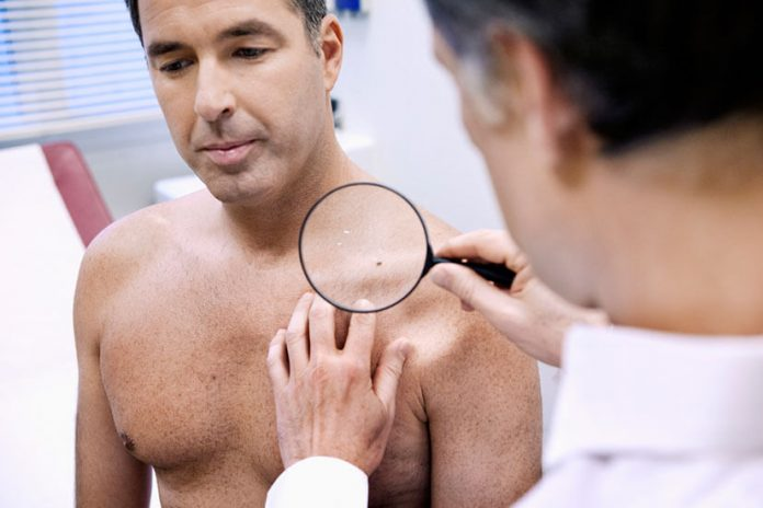 a2c412c351db17f9e061af748132a838 696x464 - Особенности проявления ВПЧ у мужчин и способы лечения заболевания