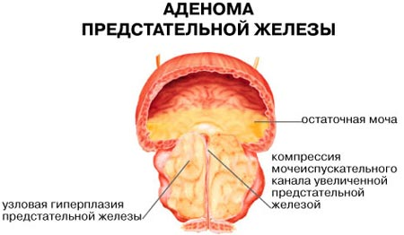 adenoma-predstatelnoy-zhelezyi