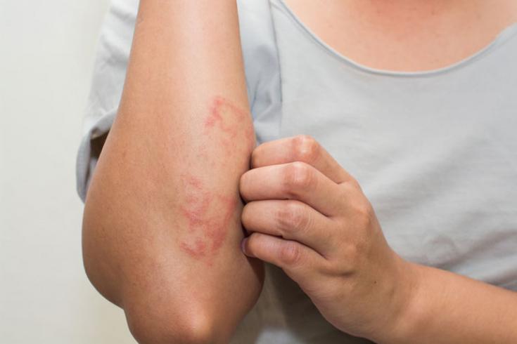 Атопический дерматит: из-за чего возникает и как лечится