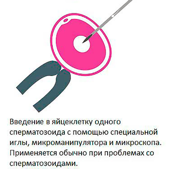 икси оплодотворение яйцеклетки
