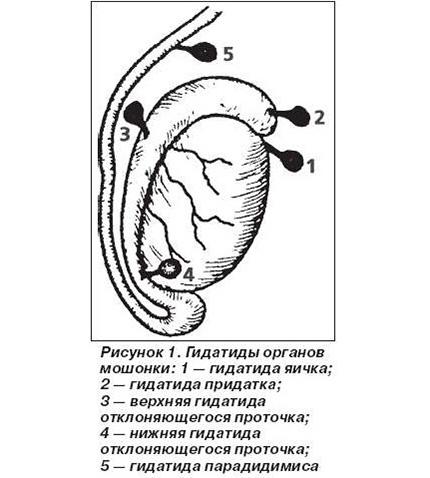 Распространенное заболевание среди мальчиков пубертатного возраста – некроз гидатиды яичка