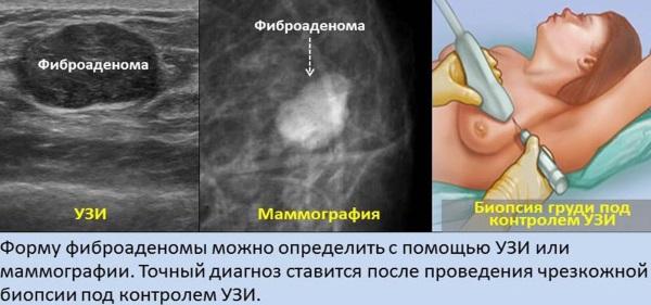 Диффузная мастопатия молочных желез: что это, симптомы фиброзно-кистозная, смешанная. Лечение народными средствами