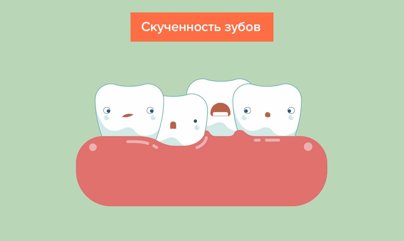 Скученность зубов в картинках