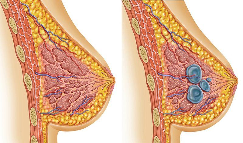 пример здоровой груди и мастопатии