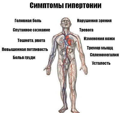 Симптомы женской гипертонии что беспокит