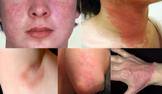 Особенности атрофического дерматита