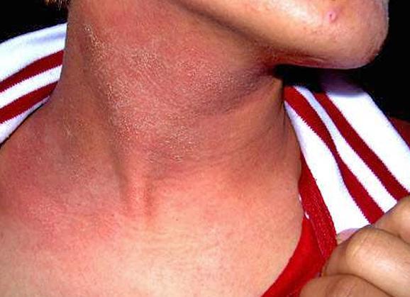 Симптомы атрофического дерматита