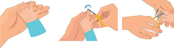 Как подстричь ногти новорожденному, когда первый раз, чем, чтобы не было вросших ногтей, уход