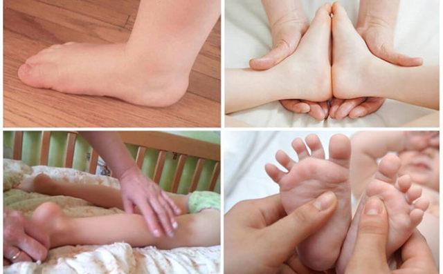 Массаж при вальгусной деформации стопы у детей